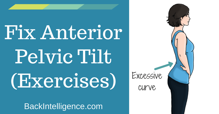 How To Fix Anterior Pelvic Tilt Posture - 10 Exercises | Back