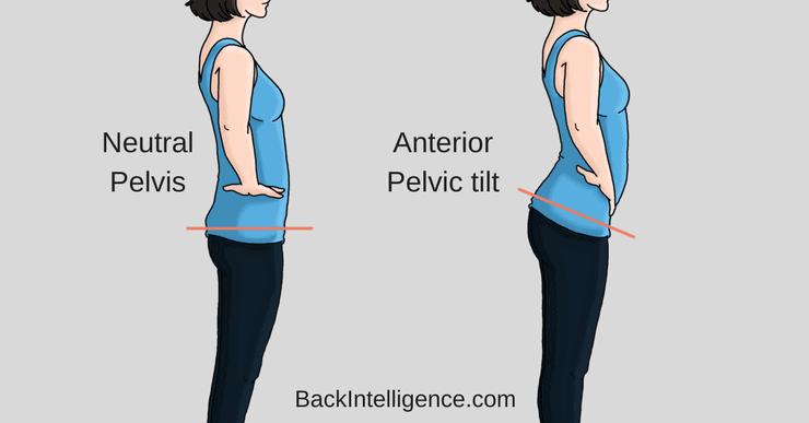 anterior pelvic tilt image