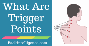What are trigger points