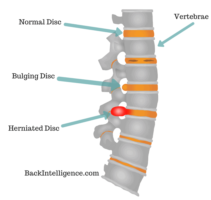 7 Herniated Disc Exercises For Lower Back (Lumbar Area)