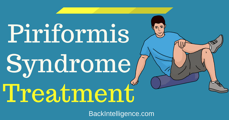 Piriformis Syndrome Treatment At Home
