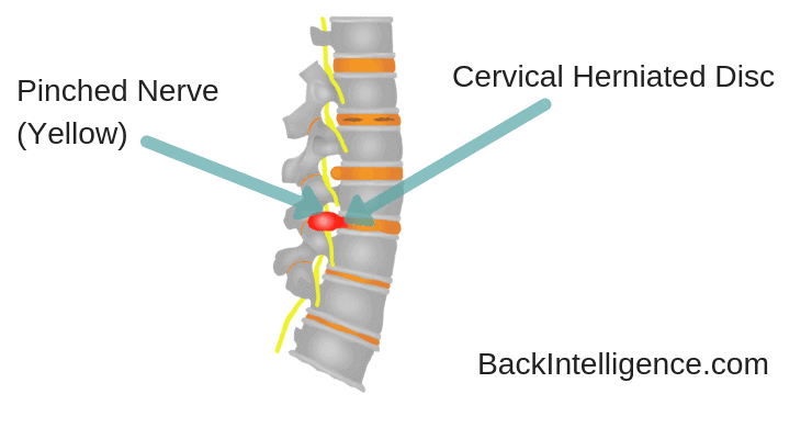 Cervical Herniated Disc Image