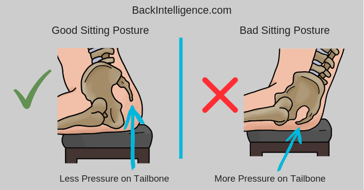 Posture and tailbone pain