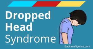 Dropped head syndrome treatment
