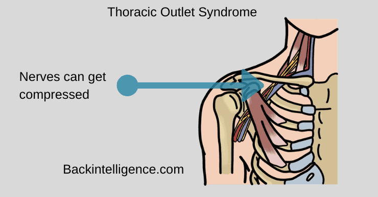 Thoracic outlet syndrome looks like