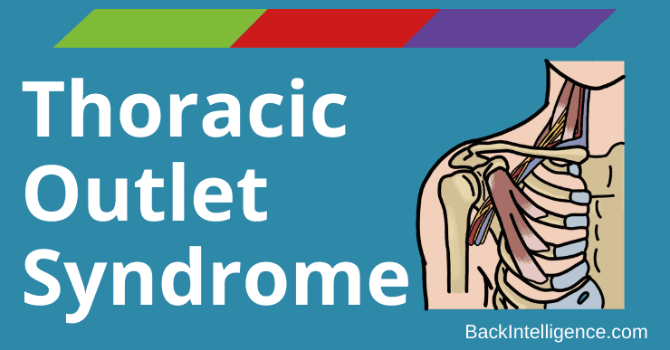 Thoracic Outlet Syndrome Top