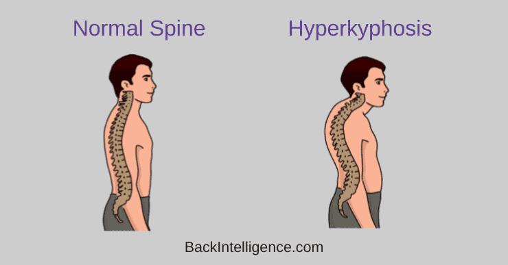 hyperkyphosis vs normal spine
